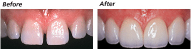 Porcelain Veneers in Thailand